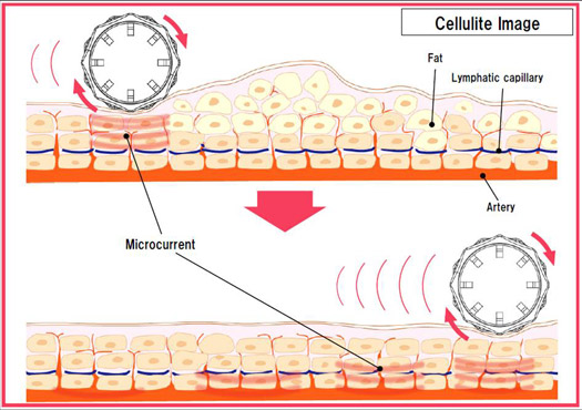 cells works to reduce cellulite